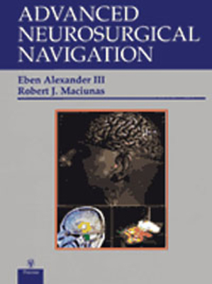 Advanced Neurosurgical Navigation - Alexander, Eben Jr (Editor)