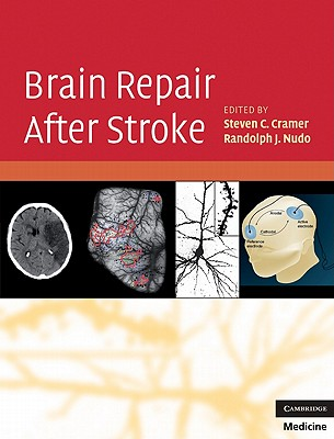 Brain Repair After Stroke - Cramer, Steven C, MD (Editor), and Nudo, Randolph J, PhD (Editor)