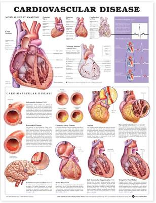 Cardiovascular Disease Anatomical Chart - Acc, and Anatomical Chart Company (Editor)