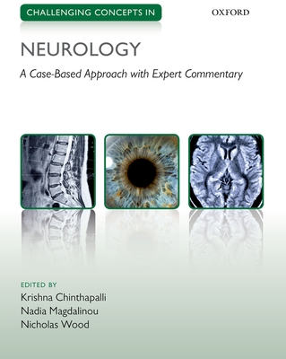Challenging Concepts in Neurology: Cases with Expert Commentary - Chinthapalli, Krishna (Editor), and Magdalinou, Nadia (Editor), and Wood, Nicholas (Editor)