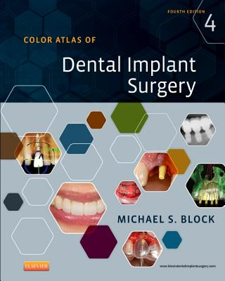 Color Atlas of Dental Implant Surgery - Block, Michael S.