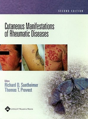 Cutaneous Manifestations of Rheumatic Diseases - Sontheimer, Richard D (Editor), and Provost, Thomas T (Editor)