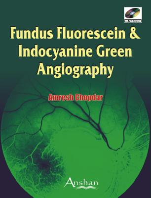 Fundus Fluorescein and Indocyanine Green Angiography - Chopdar, Amresh