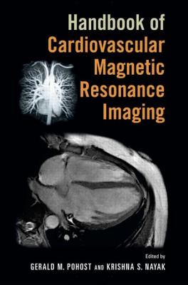 Handbook of Cardiovascular Magnetic Resonance Imaging - Pohost, Gerald M. (Editor), and Nayak, Krishna S. (Editor)
