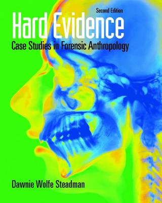 Hard Evidence: Case Studies in Forensic Anthropology - Steadman, Dawnie Wolfe (Editor)