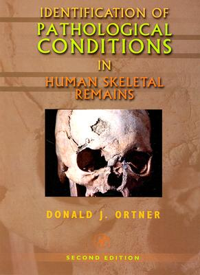 Identification of Pathological Conditions in Human Skeletal Remains - Ortner, Donald J