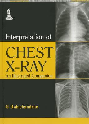 Interpretation of Chest X-Ray: An Illustrated Companion - Balachandran, G