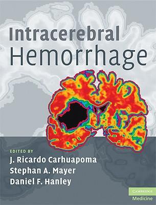 Intracerebral Hemorrhage - Carhuapoma, J Ricardo (Editor), and Mayer, Stephan A, MD (Editor), and Hanley, Daniel F (Editor)