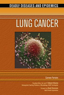 Lung Cancer - Ferreiro, Carmen, and Alcamo, Edward I, Ph.D. (Editor), and Heymann, David (Foreword by)