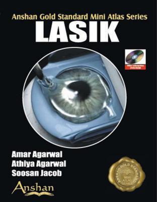 Mini Atlas of Lasik - Agarwal, Amar (Editor), and Agarwal, Athiya (Editor), and Jacob, Soosan (Editor)