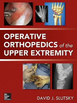 Operative Orthopedics of the Upper Extremity - Slutsky, David J.