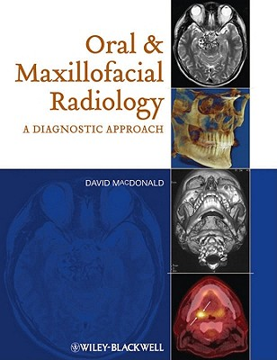 Oral and Maxillofacial Radiology: A Diagnostic Approach - MacDonald, David