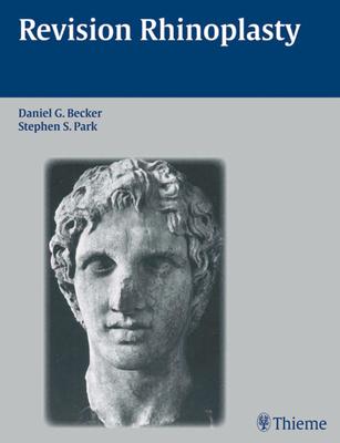 Revision Rhinoplasty - Becker, Daniel G (Editor)