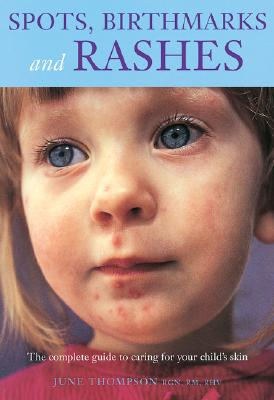 Spots, Birthmarks and Rashes: The Complete Guide to Caring for Your Child's Skin - Thompson, June, RGN, Rm