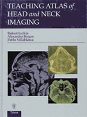 Teaching Atlas of Head and Neck Imaging - Lufkin, Robert B, and Borges, Alexandra, MD, and Villablanca, Pablo