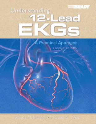 Understanding 12-Lead EKGs: A Practical Approach - Beasley, Brenda J, and West, Michael C