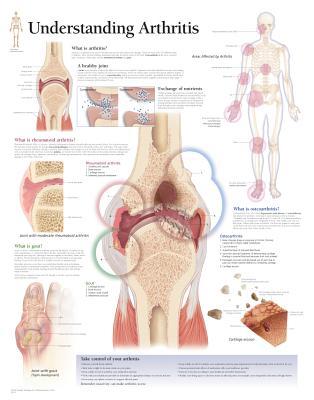Understanding Arthritis Chart - Various